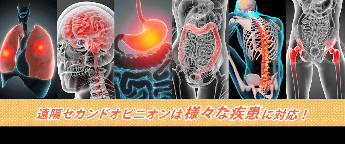 遠隔セカンドオピニオンは様々な疾患に対応