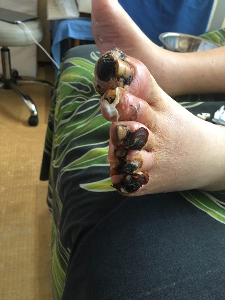 糖尿病の末端壊疽の完治治療