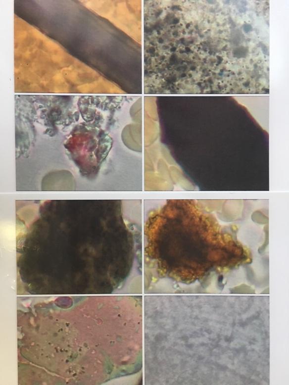 写真:様々な色や形をした末梢血液に現れる血中夾雑物