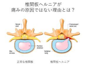 椎間板ヘルニアや腰痛の原因
